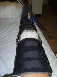 knee_new_brace.jpg